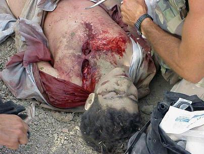 Omar Khadr blessé